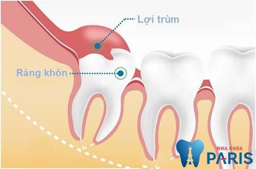 Răng số 8 mọc lệch rất dễ gây viêm lợi trùm