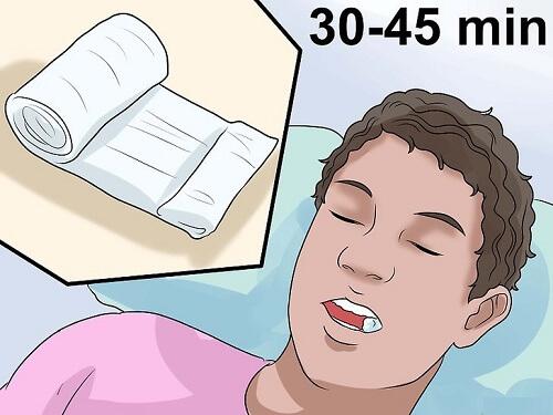 Nhổ răng khôn chảy máu bao lâu? Cách cầm máu nhanh đúng chuẩn 2