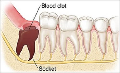 Nhổ răng khôn chảy máu bao lâu? Cách cầm máu nhanh đúng chuẩn 3