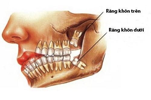 Tổng hợp 3 điều cần biết khi nhổ răng số 8 hàm dưới【BS Tư Vấn】1