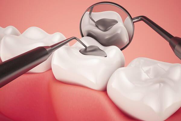 Cách chữa sâu răng ở trẻ em hiệu quả theo từng cấp độ 4