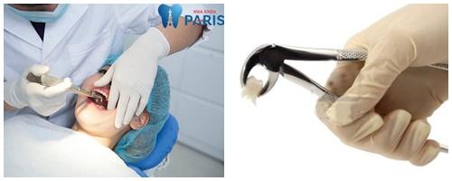 Bật mí 4 mẹo chữa tụt lợi chân răng bạn có thể thực hiện tại nhà 3