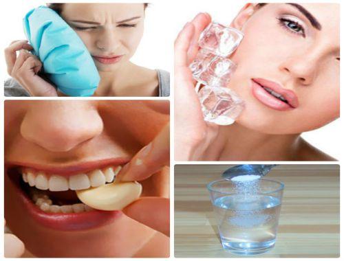 Mọc răng khôn hàm dưới và những kiến thức không thể bỏ qua 3