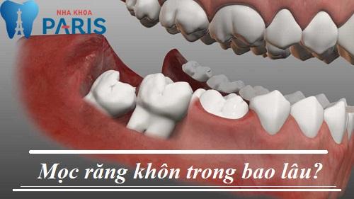 Bạn có biết: Thời gian mọc răng khôn trong bao lâu? 1