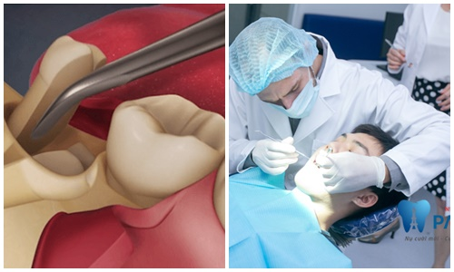 Mọc răng khôn trong bao lâu ? Giải đáp từ chuyên gia 3