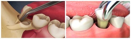 Nhổ răng có đau không? Cách nhổ răng không đau & biến chứng 1