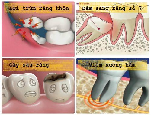 4 Tác hại không ngờ của việc nhổ răng số 8 không đúng cách là gì? 2