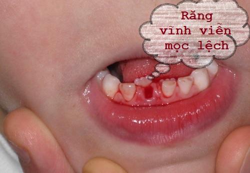 Những điều cần biết cho cha mẹ khi nhổ răng sữa trẻ em 2