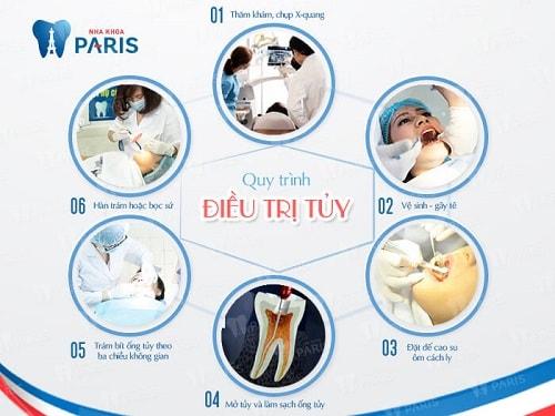 Răng sâu tới tủy chết tủy có cần nhổ bỏ không? | Nha khoa Paris 4