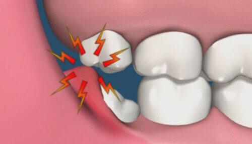 Răng số 8 bị lợi trùm - Nguyên nhân và cách khắc phục triệt để 2