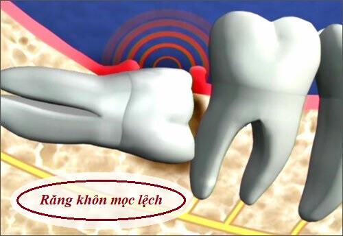 Răng khôn hàm dưới bên phải gây đau nhức phải làm sao? 1