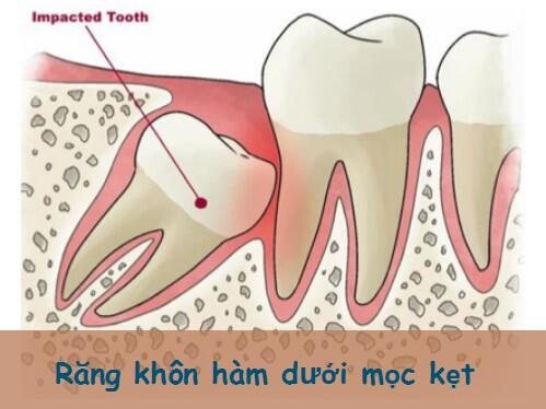 Giải đáp: Răng khôn hàm dưới mọc kẹt phải làm sao? 1