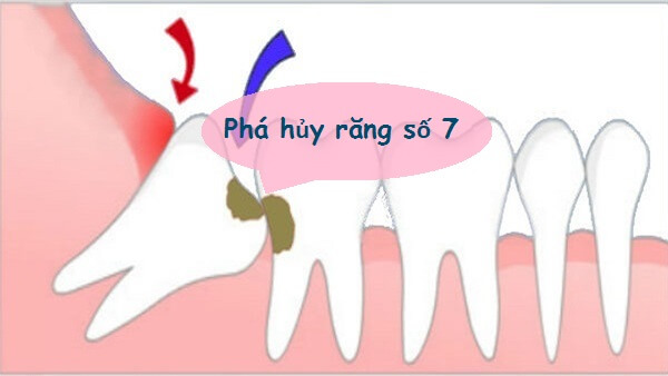 Răng khôn hàm dưới mọc kẹt có nguy cơ phá hủy răng số 7
