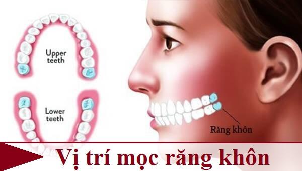Răng khôn mọc ở đâu? Chuyên gia nha khoa giải đáp 1