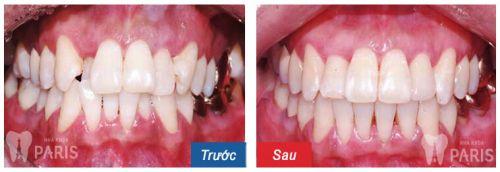 Sự khác biệt sau khi được chỉnh răng mọc lệch