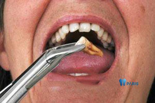 Nhổ răng khi chỉnh răng mọc lệch bằng niềng răng