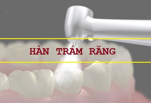 Cách chỉnh hình răng mọc lệch nhẹ bằng hàn trám thẩm mỹ