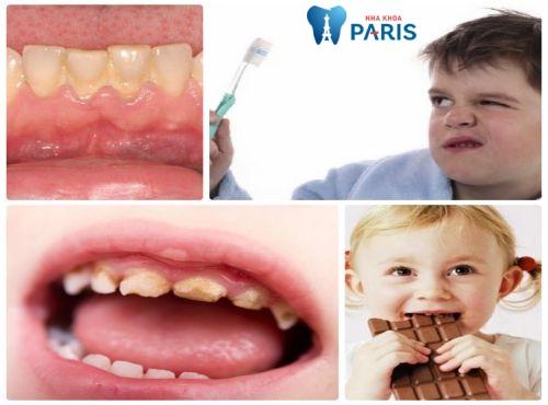 Một số nguyên nhân gây ra sâu răng ở trẻ em