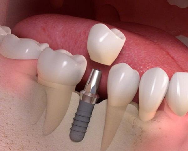 Mọc răng cấm ở người lớn có xảy ra sau khi mất răng không? 2