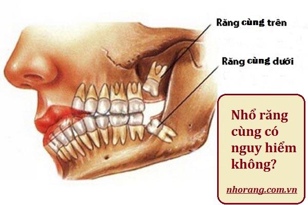 Nhổ răng cùng có nguy hiểm không?