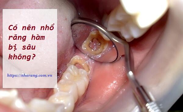 Có nên nhổ răng hàm bị sâu không?