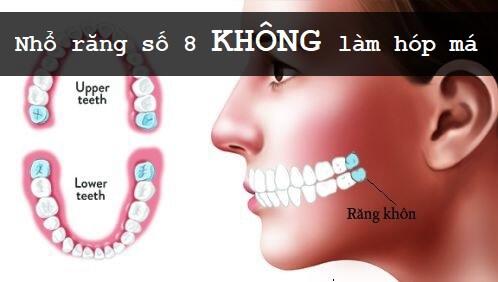 Có nên nhổ răng số 8 không? Nhổ răng số 8 có bị hóp má không? 2