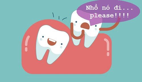 có nên nhổ răng khôn mọc lệch
