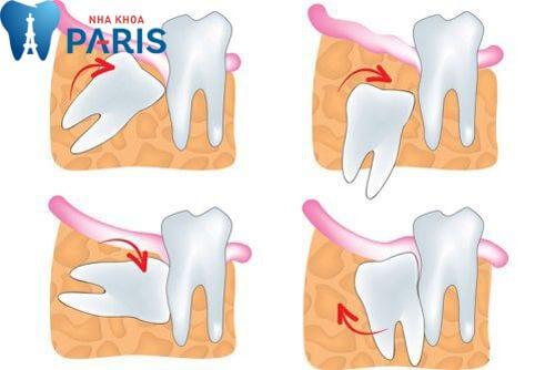 [GÓC CHIA SẺ] Những kinh nghiệm đi nhổ răng khôn hữu ích 1