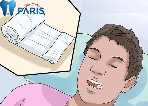 [GÓC CHIA SẺ] Những kinh nghiệm đi nhổ răng khôn hữu ích 4