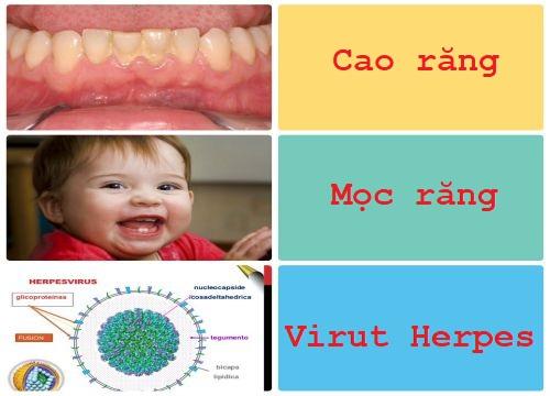 3 nguyên nhân hàng đầu gây viêm lợi trùm ở trẻ em