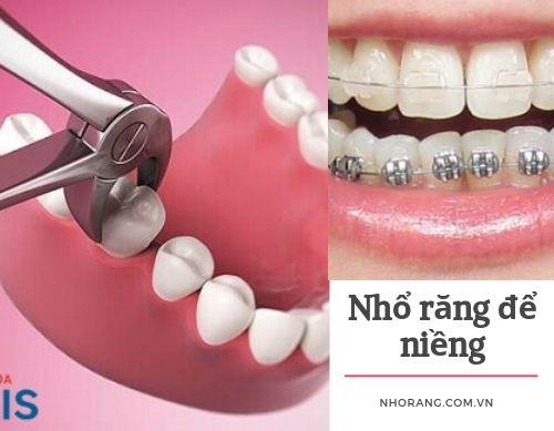 Nhổ răng để niềng có nguy hiểm không?