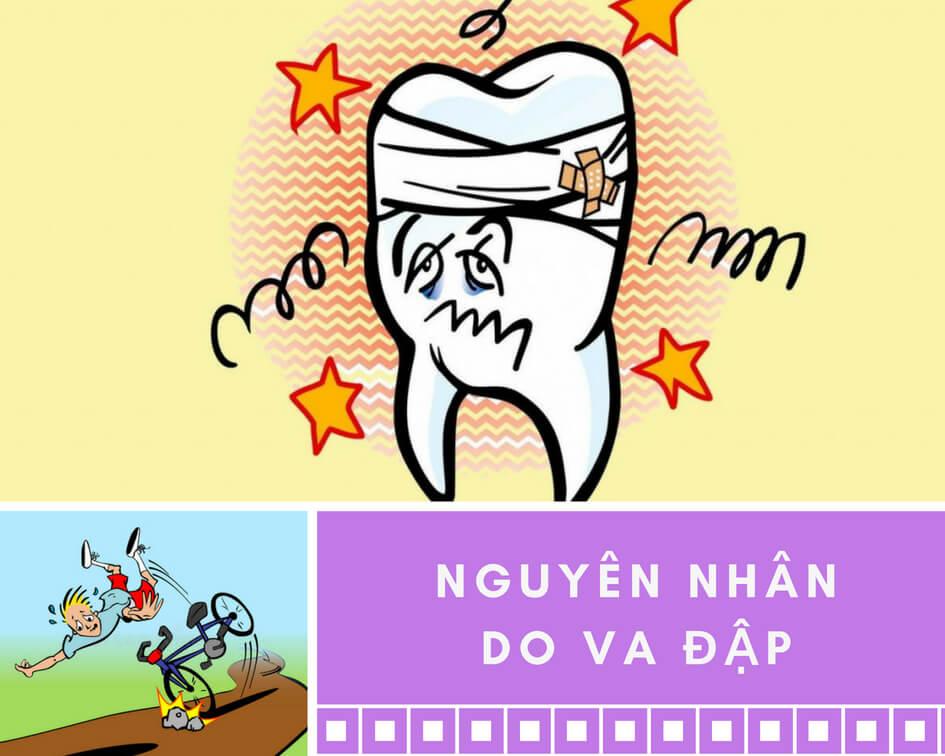 Răng lung lay do va đập