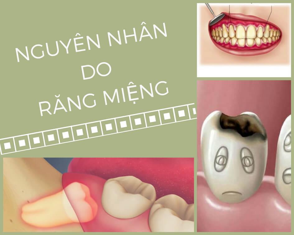 Răng bị lung lay do bệnh lý răng