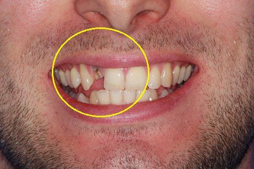 Răng lung lay - Nguyên nhân, mức độ nguy hiểm và cách điều trị hiệu quả nhất 4