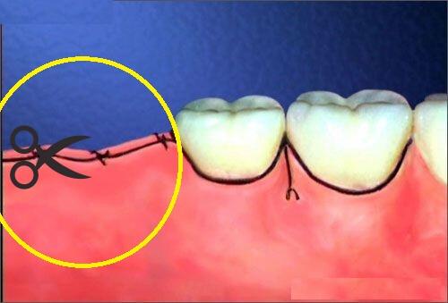 Cắt chỉ sau khi nhổ răng khôn có đau không?