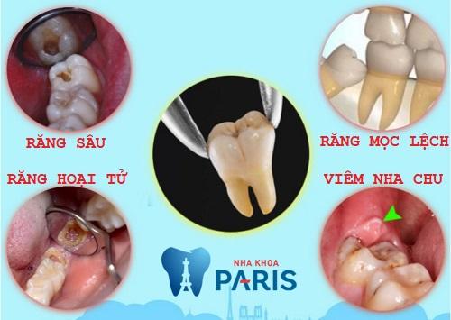 Có nên nhổ răng khôn không? - 4 trường hợp cần nhổ bỏ răng khôn gấp! 2