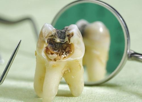 Răng số 8 thường dễ bị sâu do ở gần răng hàm nhai
