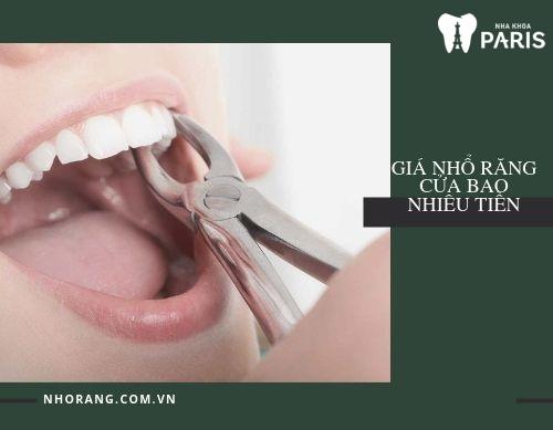 Giá nhổ răng cửa bao nhiêu là chi phí hợp lý nhất?