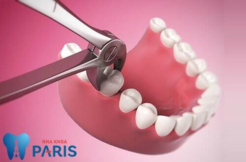 Giá nhổ răng số 6 là bao nhiêu? Nhổ răng số 6 có nguy hiểm không? 2