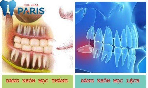 Mọc răng khôn hàm dưới và những kiến thức không thể bỏ qua 1