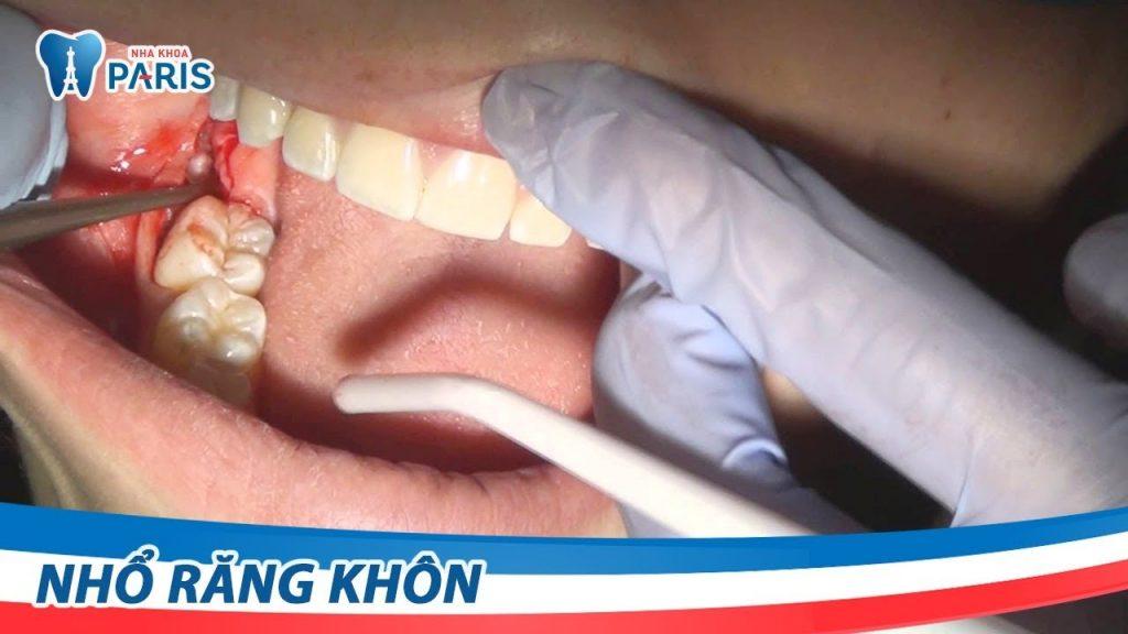 Video nhổ răng khôn bằng máy siêu âm Piezotome