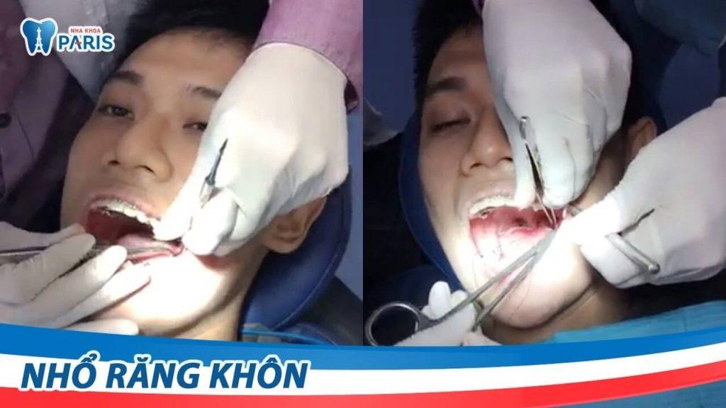Video nhổ răng không tại nha khoa Paris