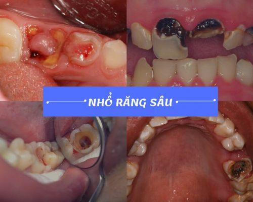 nhổ răng sâu có nguy hiểm không