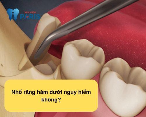 Nhổ răng hàm dưới có ảnh hưởng gì không? Chuyên gia nha khoa giải đáp