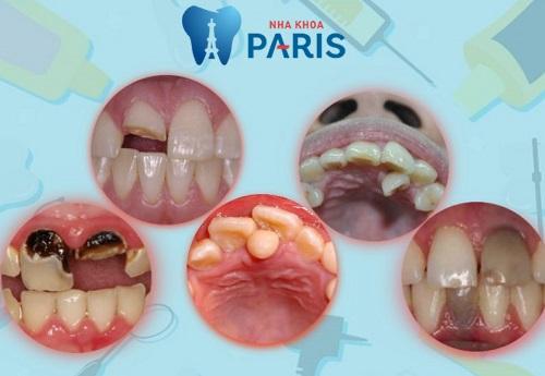Nhổ răng cửa an toàn- không biến chứng với công nghệ Piezotome 1