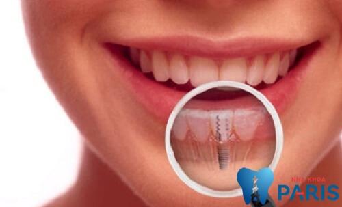 Nhổ răng cửa an toàn- không biến chứng với công nghệ Piezotome 4