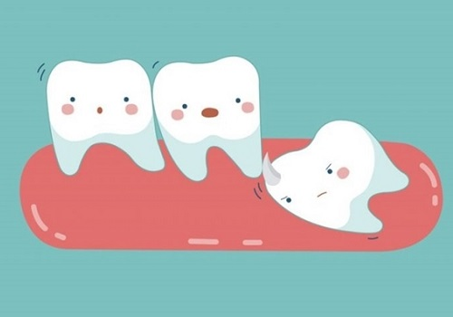 Giải đáp: Nhổ răng khôn có ảnh hưởng đến sức khỏe không? 1