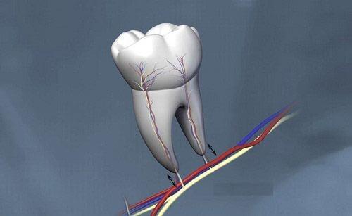 Giải đáp: Nhổ răng khôn có ảnh hưởng đến sức khỏe không? 4