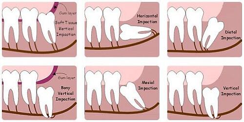 Nhổ răng khôn có đắt không? Nhổ răng khôn có đau không? 1