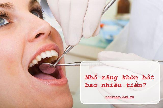 Chi phí nhổ răng khôn hết bao nhiêu tiền?